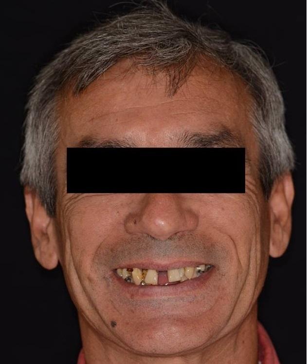 Caso_Clinico_Dente_em_um_dia