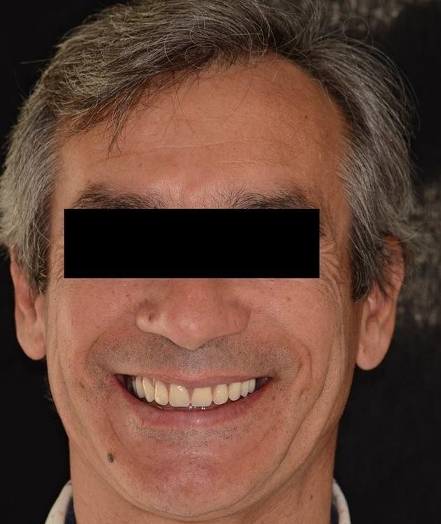 Caso_Clinico_Dente_em_um_dia_2
